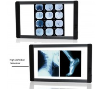 medical led x ray film viewer negatoscope